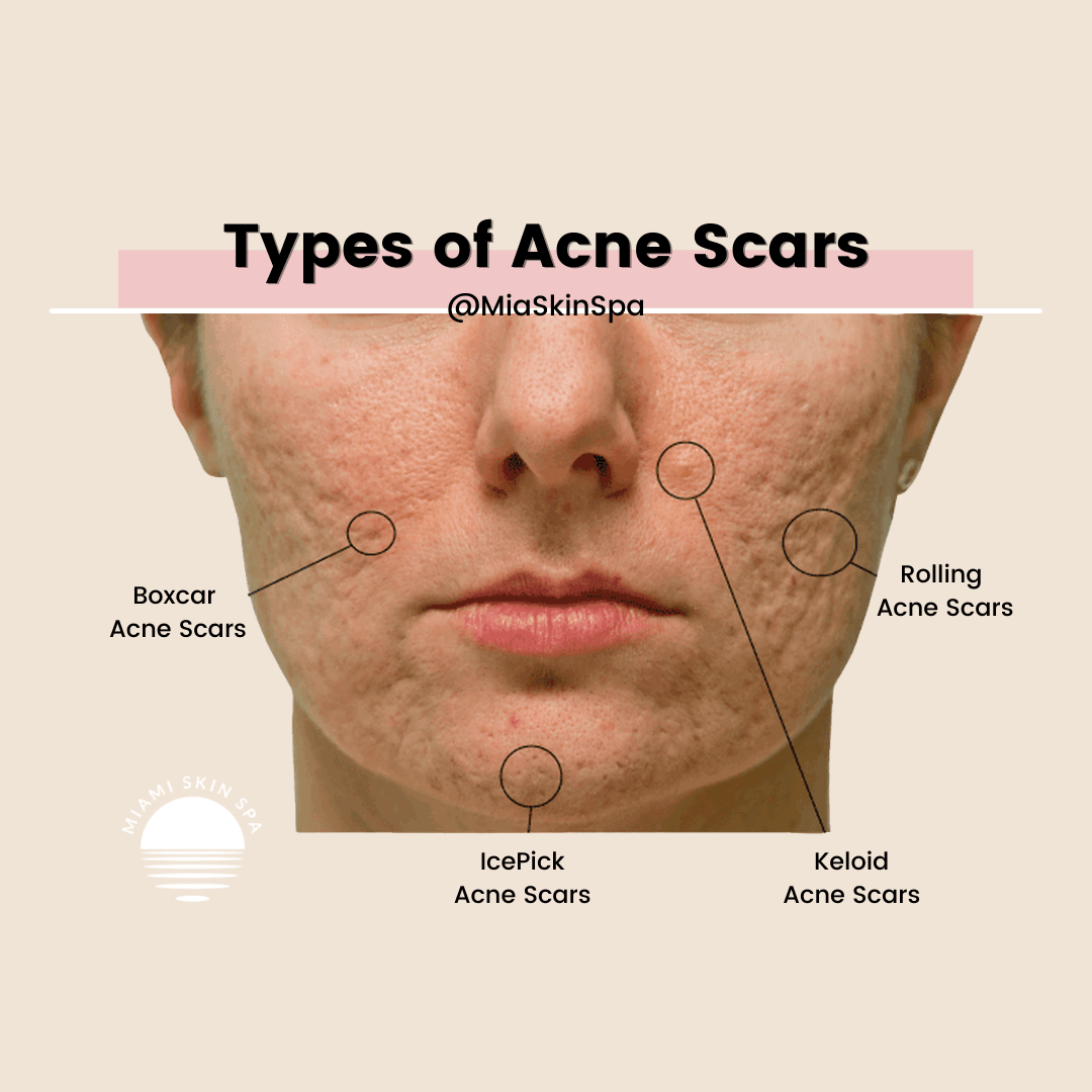 A womans face with each of the different types of acne scars highlighted and circled so the difference between each type of acne scar becomes clear