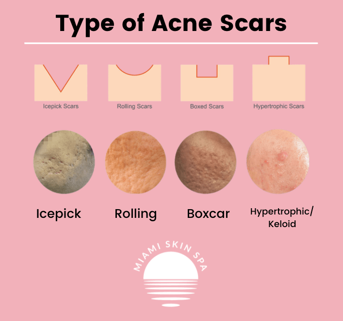 Illustrations and pictures of the 4 different types of acne scars: keloid acne scars, rolling acne scars, icepick acne scars, boxcar acne scars