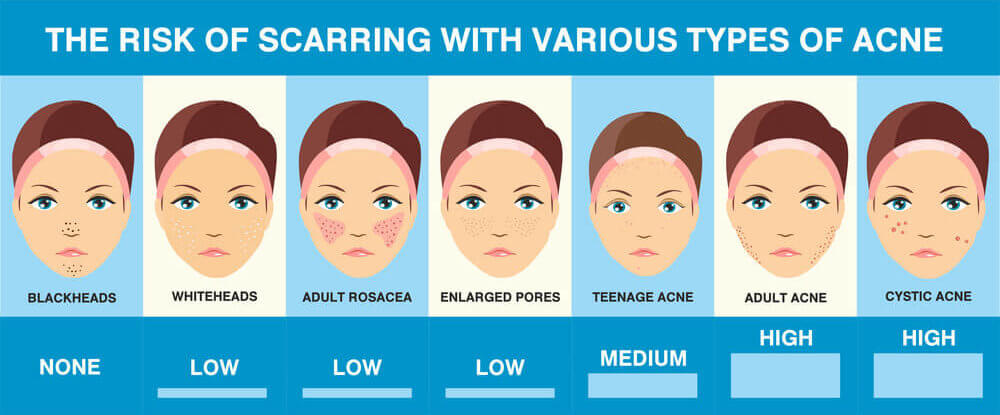 A Diagram of the different types of acne and how likely each is to cause acne scars and acne scarring