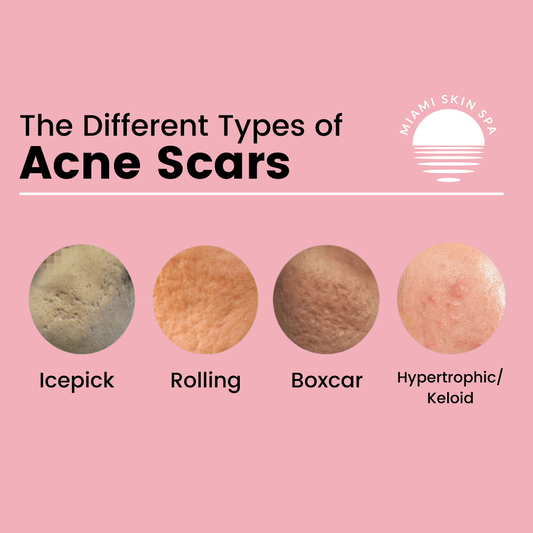 A image showing the different types of acne scarring on the face and cheeks such as icepick acne scars, rolling acne scars, boxcar acne scars, and hypertrophic or keloid acne scars
