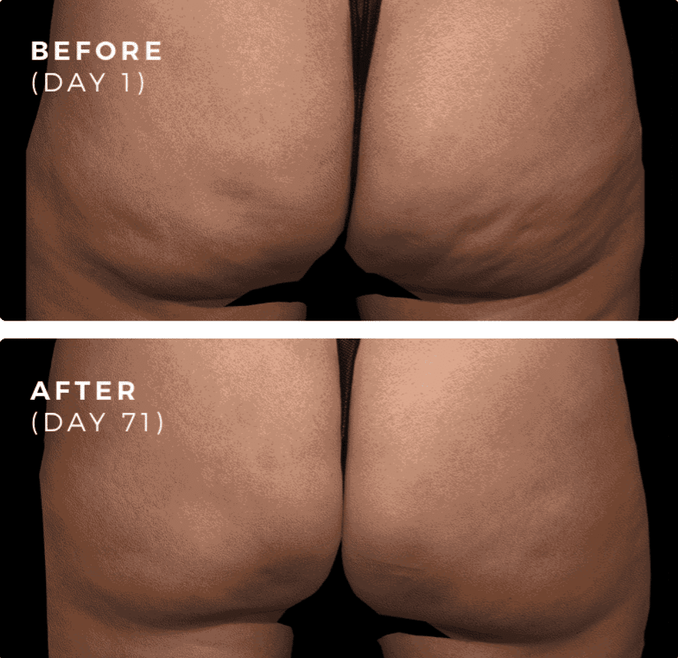 A woman's before and after picture, with the 1st image taken on day 1 prior to her QWO cellulite treatment and the 2nd image 71 days after her first QWO procedure.