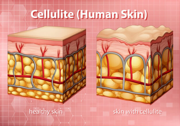 An illustration that shows human skin with cellulite and human skin without cellulite and how they appear different