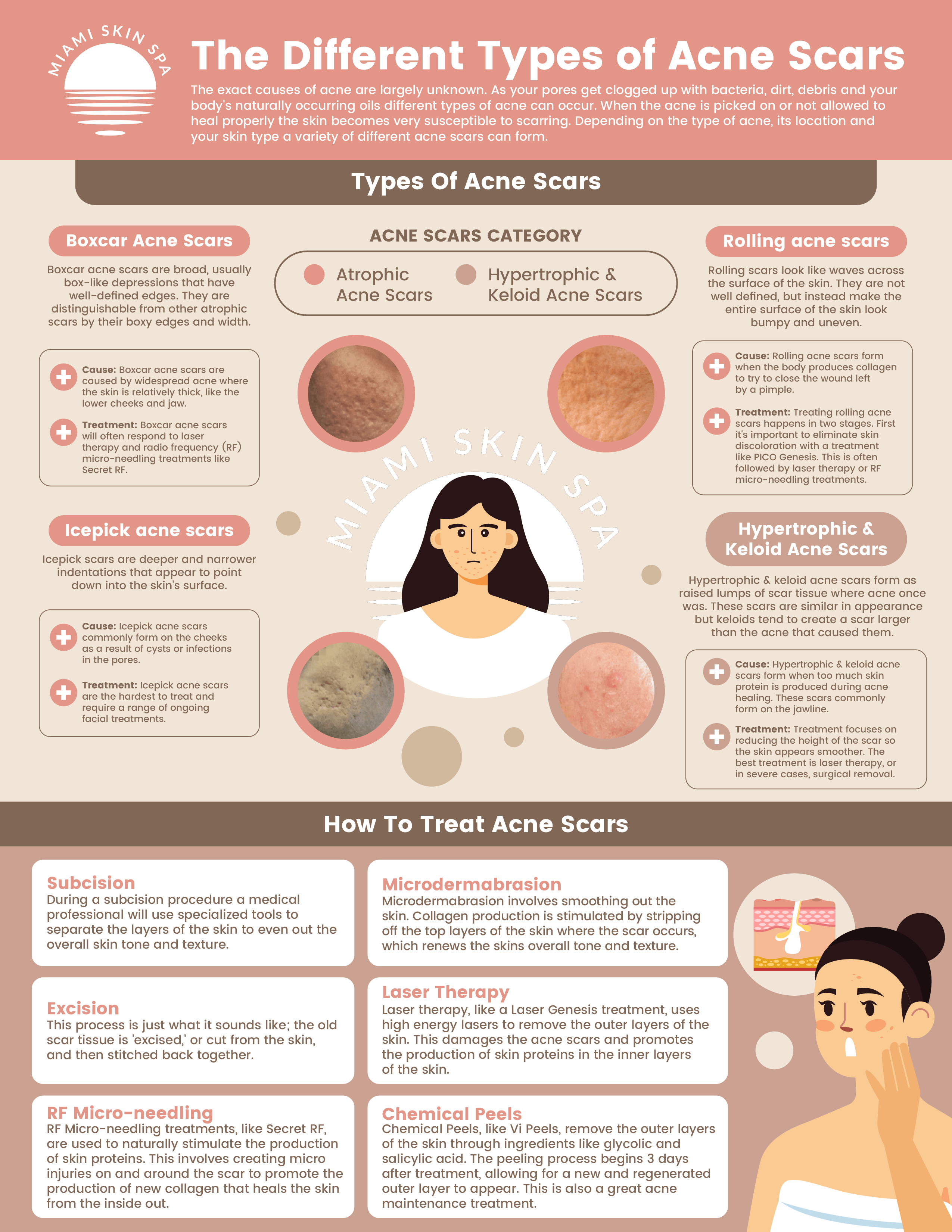An infographic explaining the different causes of acne. that then breaks down the 4 types of acne scars (Boxcar acne scars, icepick acne scars, rolling acne scars, and hypertrophic/keloid acne scars). For each types of acne scarring the cause of the scar and the recommended treatment is listed. At the bottom a description of all the different acen scarring tretaments available are clearly defined.